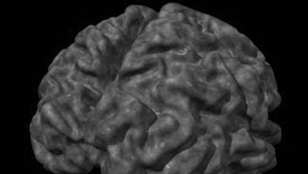 Gehirn plastisch schwarz weiß