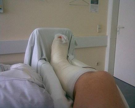 Bein in Gips auf Schiene
