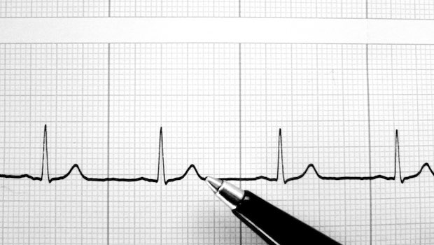 Linie Herzschlag und Kugelschreiber