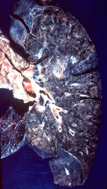 Makroskopie Lunge Toxoplasmose